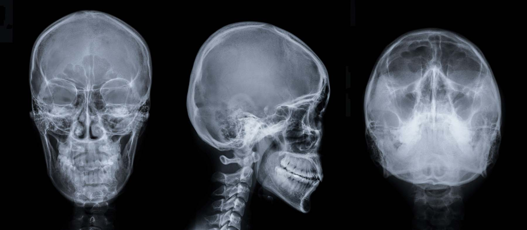 X Ray Procare Radiology