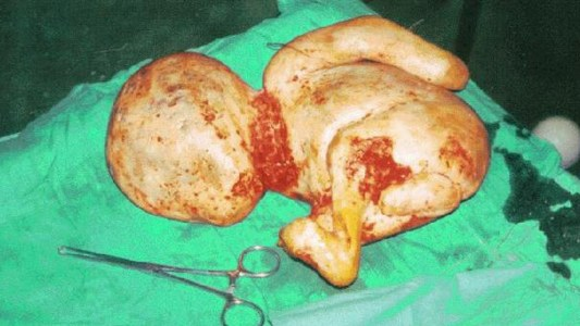 litopedia