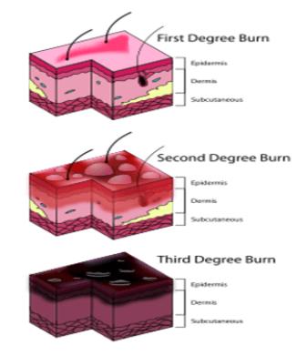 clasificación quemaduras