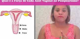 Anel Vaginal: Qual é a força de cada uma no Pompoarismo?