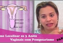 Anéis Vaginais: Pompoarismo - AULA 2