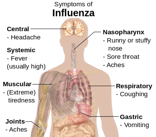Influenza/flu symptoms: headache, fever, achy joints, coughing, sneezing, sore throat, vomiting.