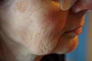 rechte, mit Alcina Skin-Manager behandelte Seite