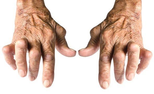 Punca Sakit Sendi, Lutut dan Cara Mengubatinya