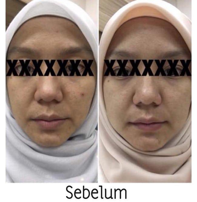 testimoni makayla skincare penjagaan muka semulajadi