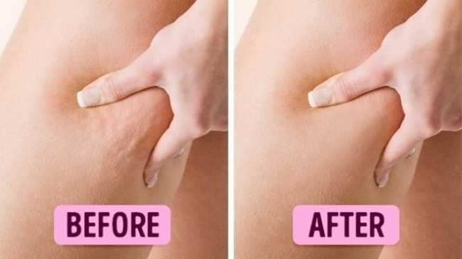 atasi masalah rekahan pada kulit