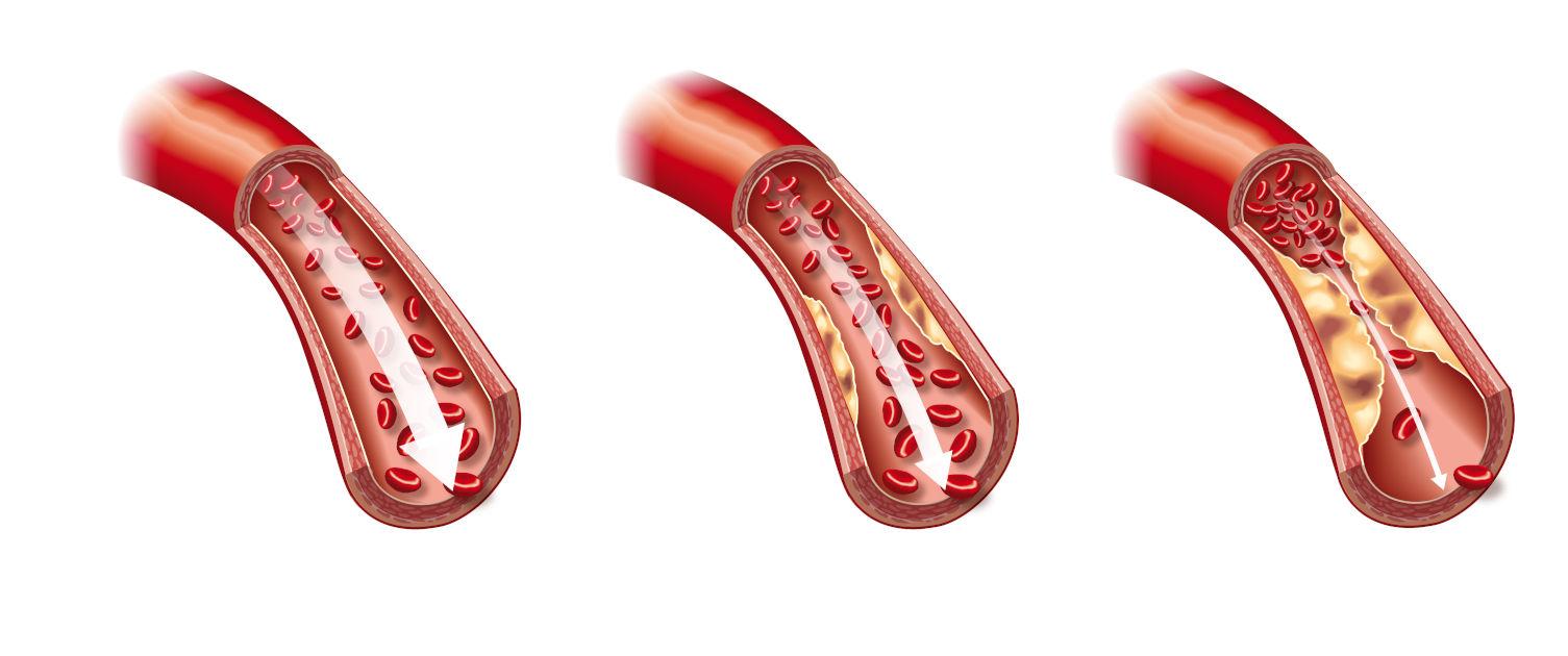 Trombóza: Čo to je a aké má príznaky?