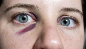 Kuinka nopeasti poistaa mustelma silmän alla
