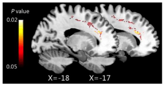 cambios cerebrales por mindfulness