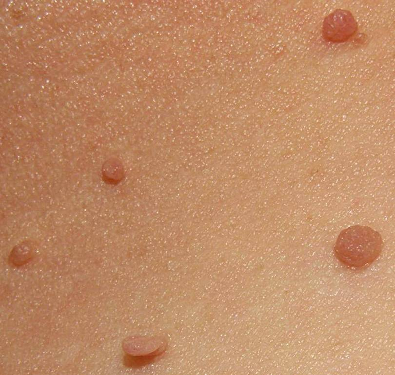 Why do Skin Tags Grow during Pregnancy?