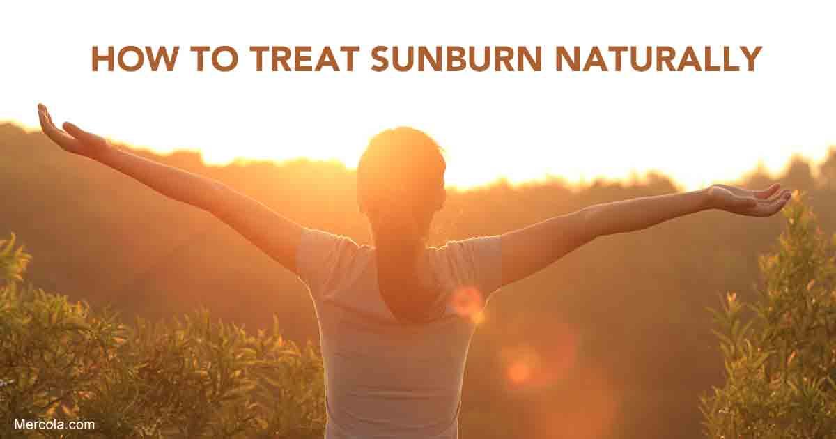 sunburn-fb Sunburn – Discover Natural Sunburn Treatment and Remedies Health Tips