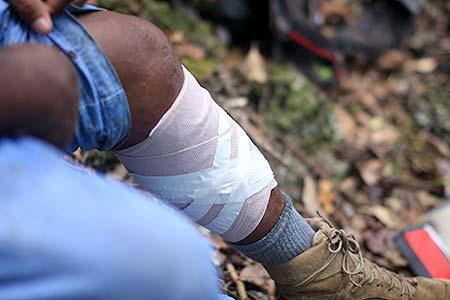 first aid on leg palau bentprop