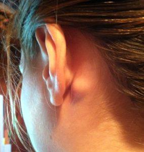 svullna lymfkörtlar bakom örat