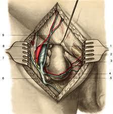 Бедренная грыжа у мужчин симптомы фото. Бедренная грыжа