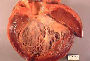 Стероиды побочные эффекты : сердце