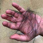 気にしなくても良い抜け毛、注意が必要な抜毛