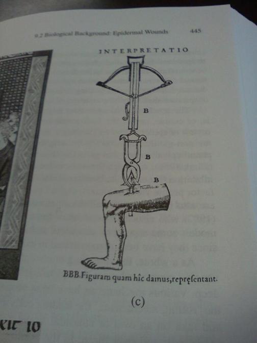 Ingegneria Biomedica Medievale