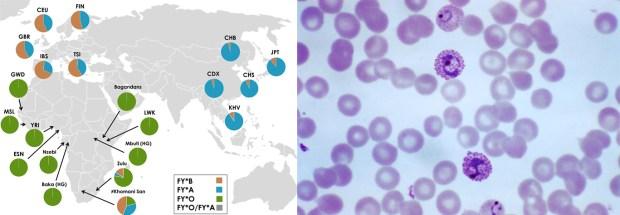 Grafico che mostra la distribuzione degli alleli Duffy nel mondo, e uno striscio al microscopio con P.vivax