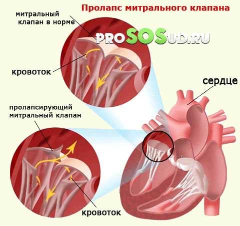 Отрыв хорды в сердце