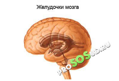 Гидроцефалия головного мозга у взрослого человека: причины, лечение