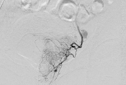 Prostate artery embolisation