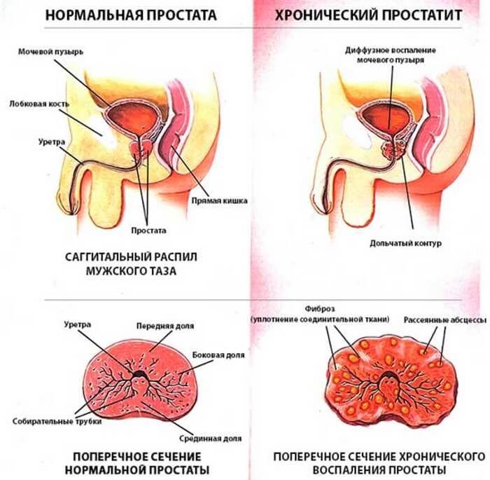A prostatitis zsír kezelése Prosztata gyakorlatok otthon