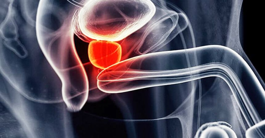 XP prostatitis vesikulit