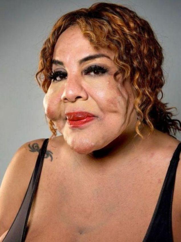 11 лет назад пластический хирург ввел ей под кожу цемент. Увидев женщину сегодня, ты не поверишь своим глазам!