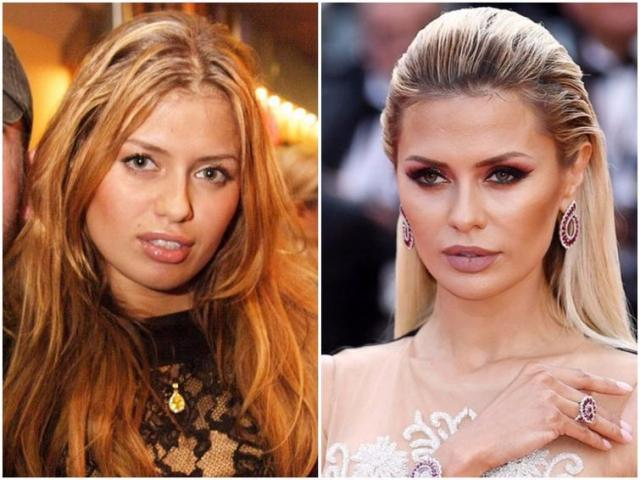 10 знаменитостей, сделавших удачную пластику носа