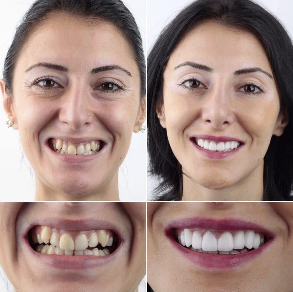 уровень красивые зубы фото до и после четвергам слоте откровенных