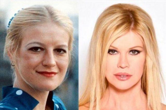 Вот как сейчас выглядит женщина, которая сделала 52 операции