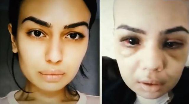 Девушка хотела идеальную внешность, но пластическая операция оставила жуткие последствия