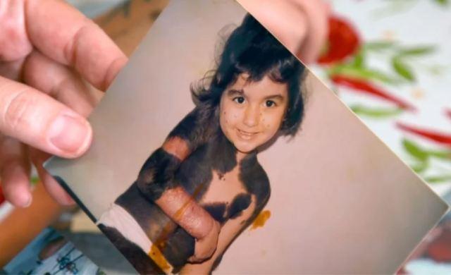 Девочке, чьё тело было покрыто родинками, уже 25 лет. Как она выглядит сейчас