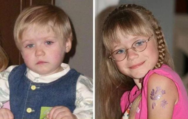 Любовь спасет мир - 12 трогательных фото детишек До и После усыновления