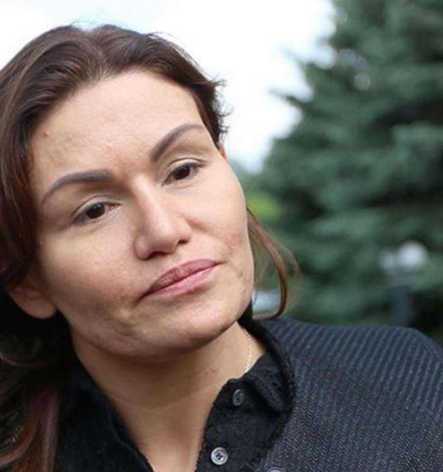 Стала фриком? Как сейчас выглядит жена Кирилла Андреева после неудачной пластики