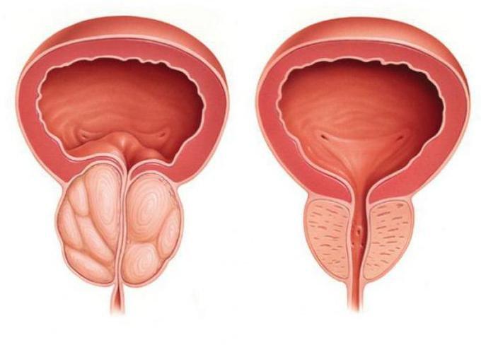 A prosztatitis kövei a húgyhólyagban mi a prosztatagyulladás és annak következményei