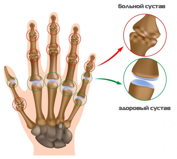 Периостит стопы симптомы и лечение