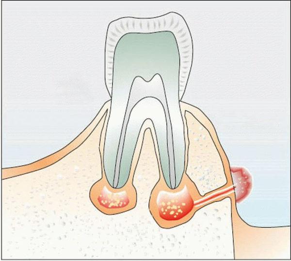 a boka ízületének periosteumának gyulladása