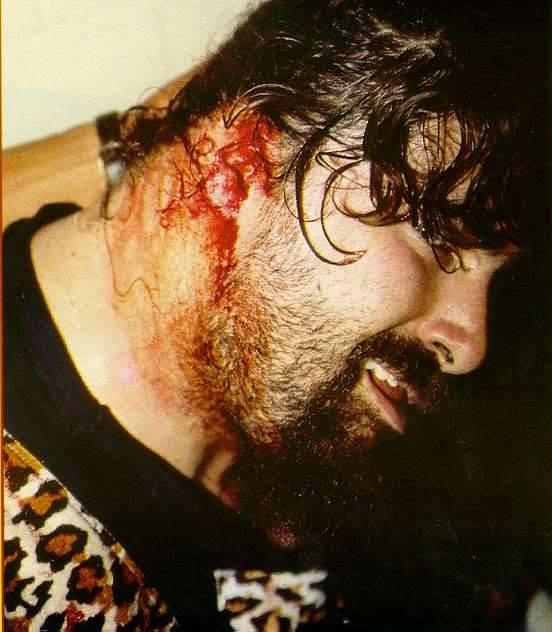 Mick Foley bloody backstage after his ear was ripped off during a match against Big Van Vader in Germany