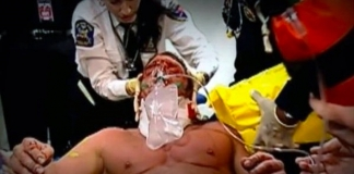 Triple H | 4 Injuries That Came Close to Ending His Career (and Life)