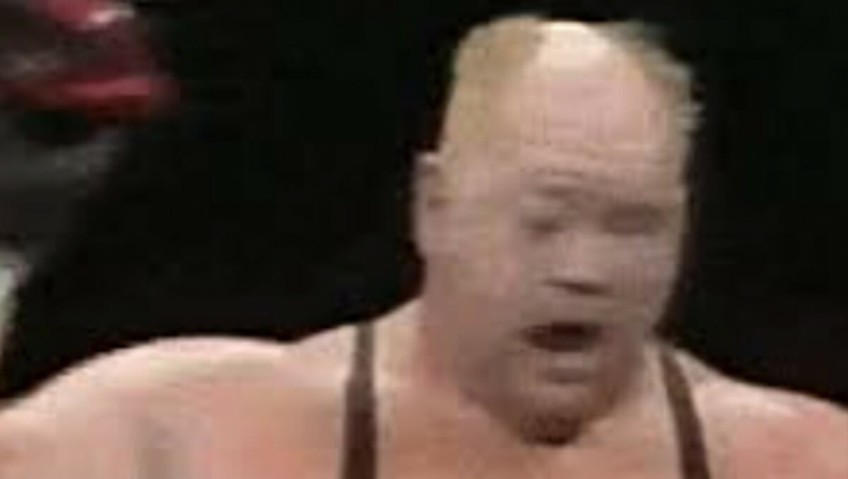 Moments after Big Van Vader lost his eye in a stiff match against Stan Hansen in 1990.