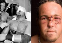 Joey Mercury - The Injury That Brokedown a Promising Career