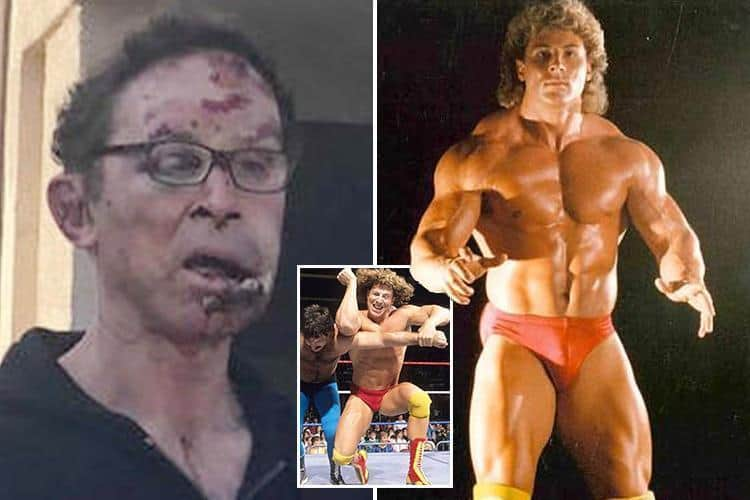 A disturbing photo showing the damage Tom Magee sustained after a cowardly attack outside his home in May of 2018