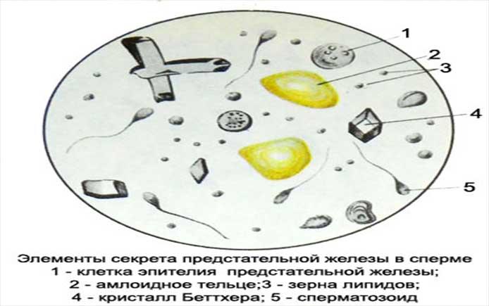 Макрофаги в спермограмме: что они собой представляют. Макрофаги в сперме (4 шт.), что делать