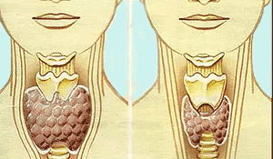 Увеличение щитовидной зелезы