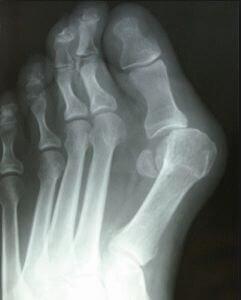 Вид косточки на рентгеновском снимке