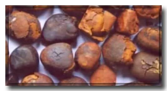 Причины образования камней в желчном пузыре