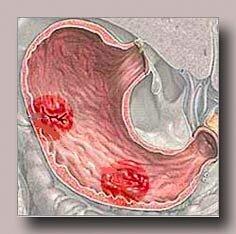 Медикаментозное лечение язвенной болезни желудка