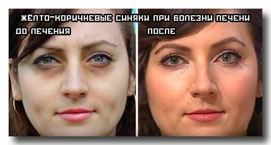 Результат лечения синяков под глазами при заболеваниях печени