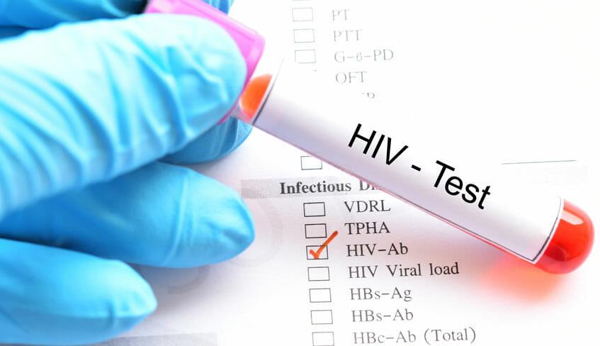 pruebas sida